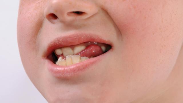 舌の癖で歯並びが悪くなる?舌癖を治すトレーニング【MFT】とは