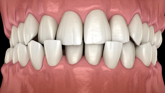 【歯と滑舌】歯並びは発音に悪影響を与える!矯正中は滑舌が悪くなるって本当?