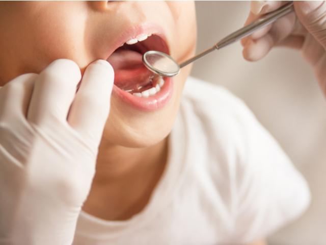 【シーラント】で子どもの歯を守ろう!虫歯予防になる理由と効果を徹底解説