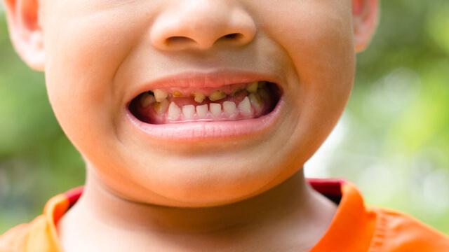熱中症対策の水分補給はこまめに!スポーツドリンクが歯に与える悪影響とは