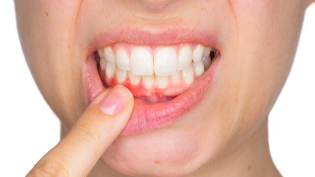 すぐに治療を!歯周病で最も重い症状の【歯槽膿漏(歯周炎)】の原因と予防法